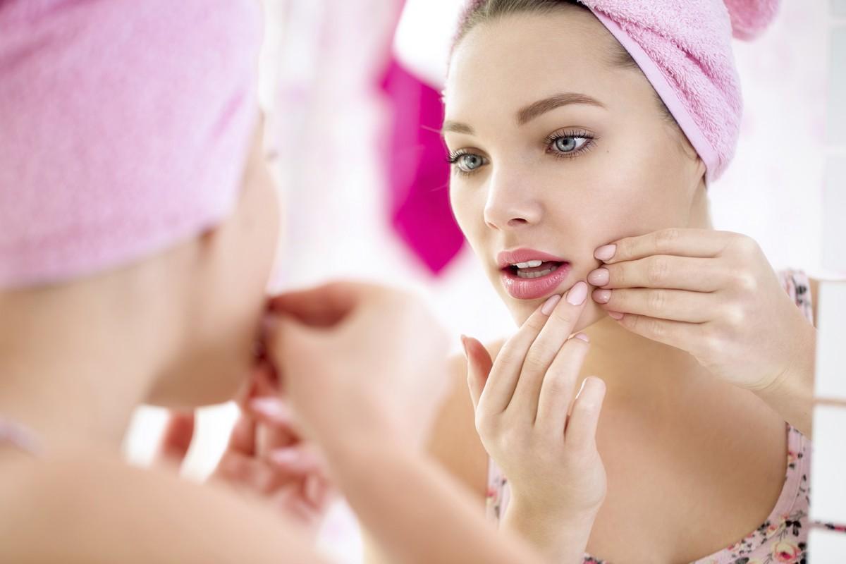 6 Acne Treatment Tips