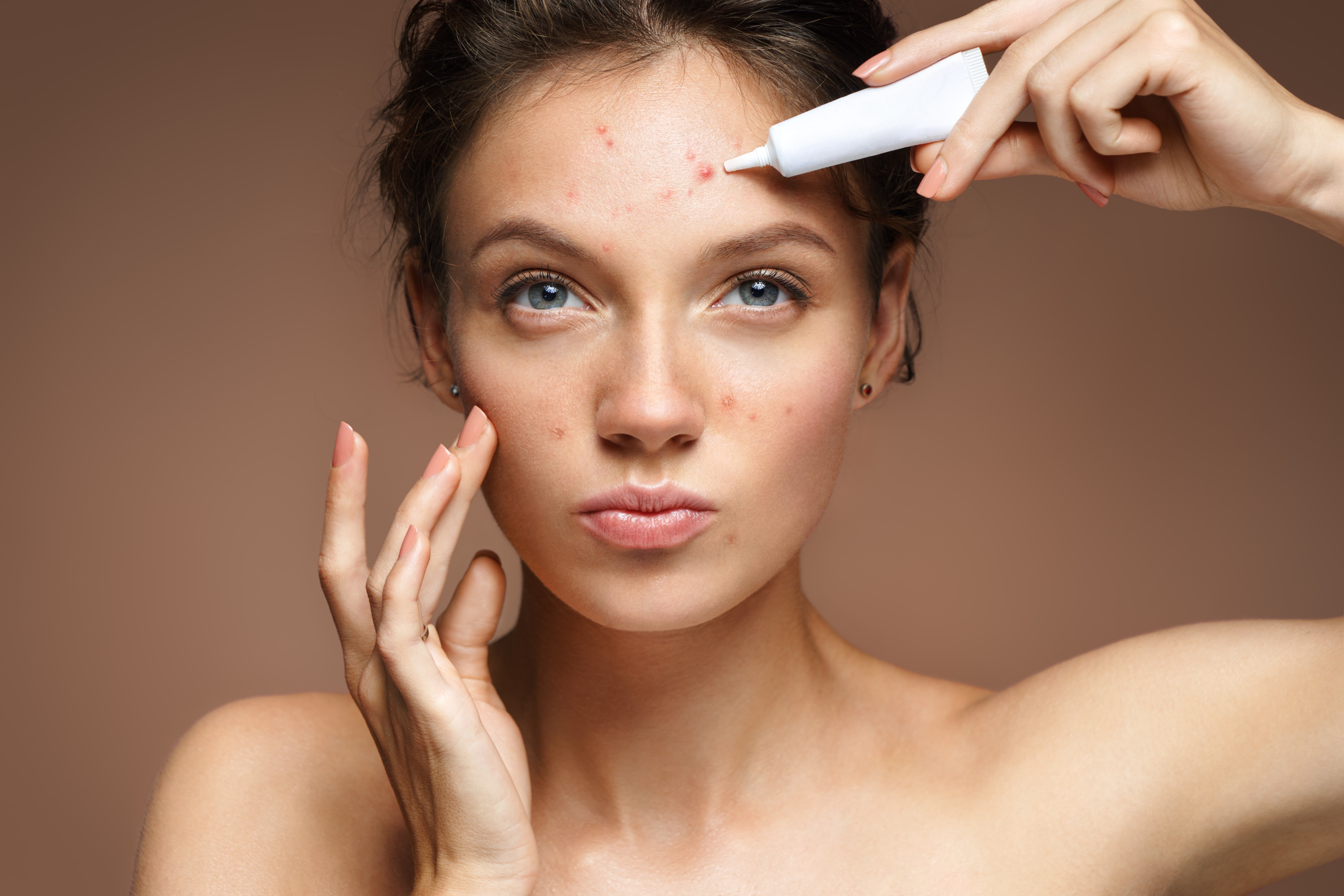 7 Causes of Adult Acne and Ways to Treat It